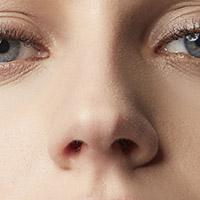 Nasal Valvoplasty (Non-surgical)